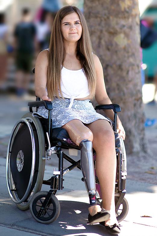 Steph, jobb lába amputált – protézise van, jobb keze hiányzik, használ kerekesszéket, mankót, van jogsija