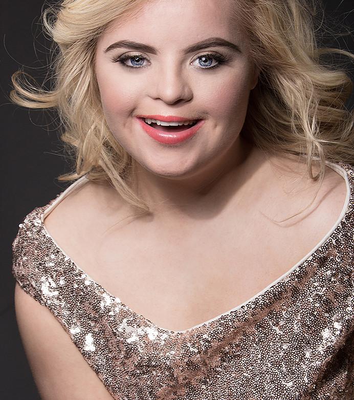 Kate, Down-szindróma