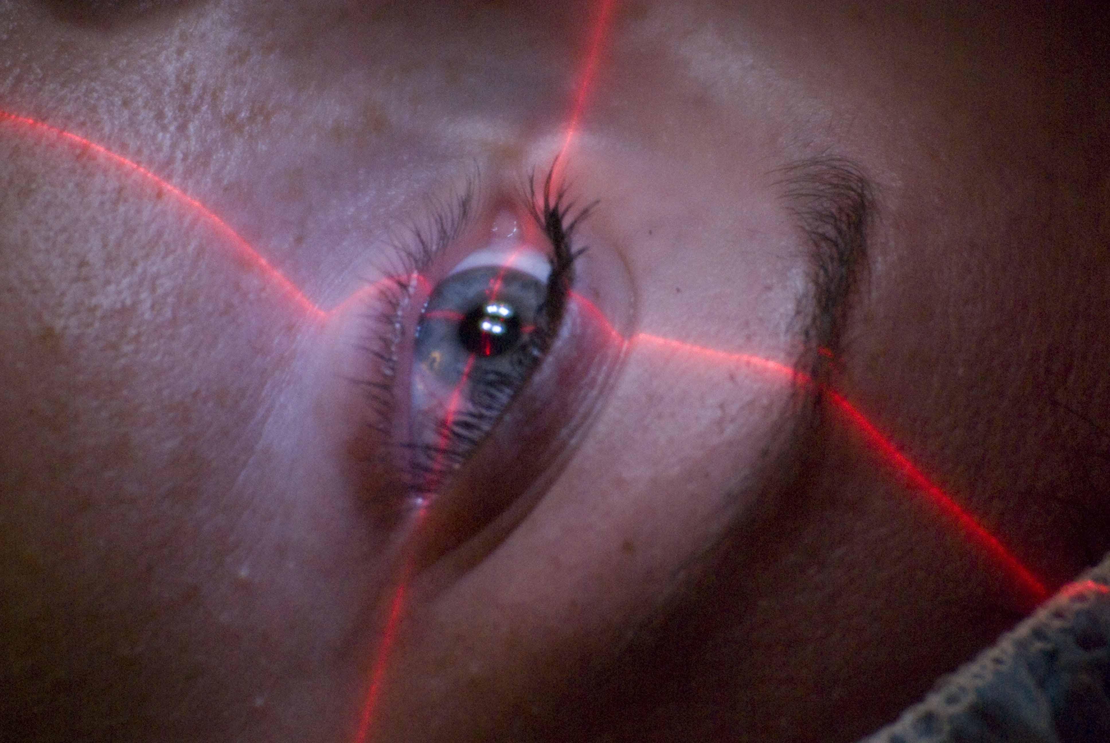 Öt kevésbé ismert tény a lézeres szemműtétről - Szemünk Világa 1fd2ca201a