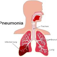 Tüdőgyulladás - még mindíg veszélyes