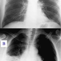 Tüdőgyulladás/2 - egy veszélyesebb forma