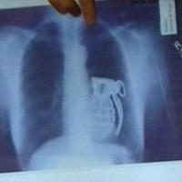 Rómeó vagy röntgen?