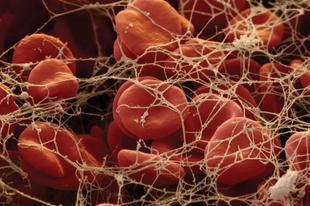 Mikor gondoljunk mélyvénás trombózisra?