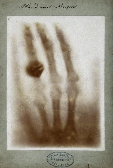 First_medical_X-ray_by_Wilhelm_Röntgen_of_his_wife_Anna_Bertha_Ludwig's_hand.jpg
