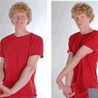 Hogyan melegítsd be az ujjaidat és az alkarod, miközben kisseb napsütés hatására azonnal bőrrákot kapsz