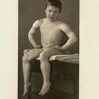 Fotográfia és orvostudomány – Heinrich Curschmann klinikai illusztrációi 1894-ből (18+)
