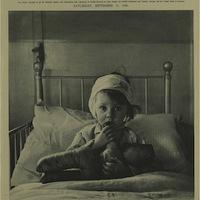 Cecil Beaton: Eileen Dunne, a sebesült kislány (1940)