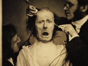 Duchenne, a fényképező orvos kísérletei (1852-1862)
