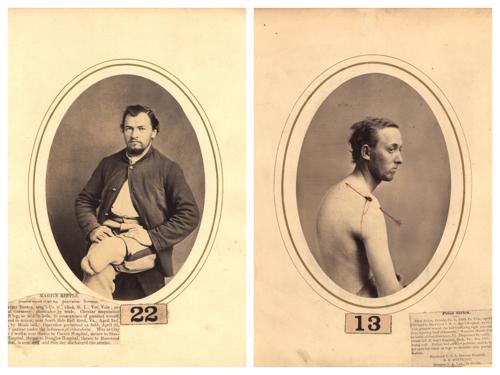 Egy New York-i sebész képei polgárháborús sebesültekről