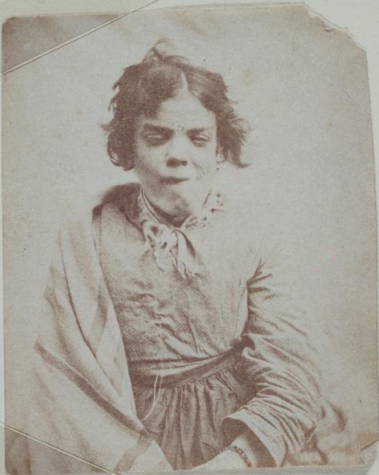 Portrait_of_a_patient,_Surrey_County_Asylum.jpg