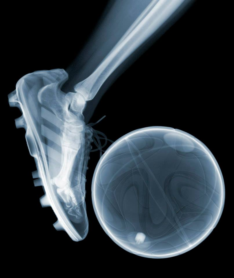 Fotó: Nick Veasey: World Cup, C-Type Print mounted on Plexi, 2014 © Nick Veasey