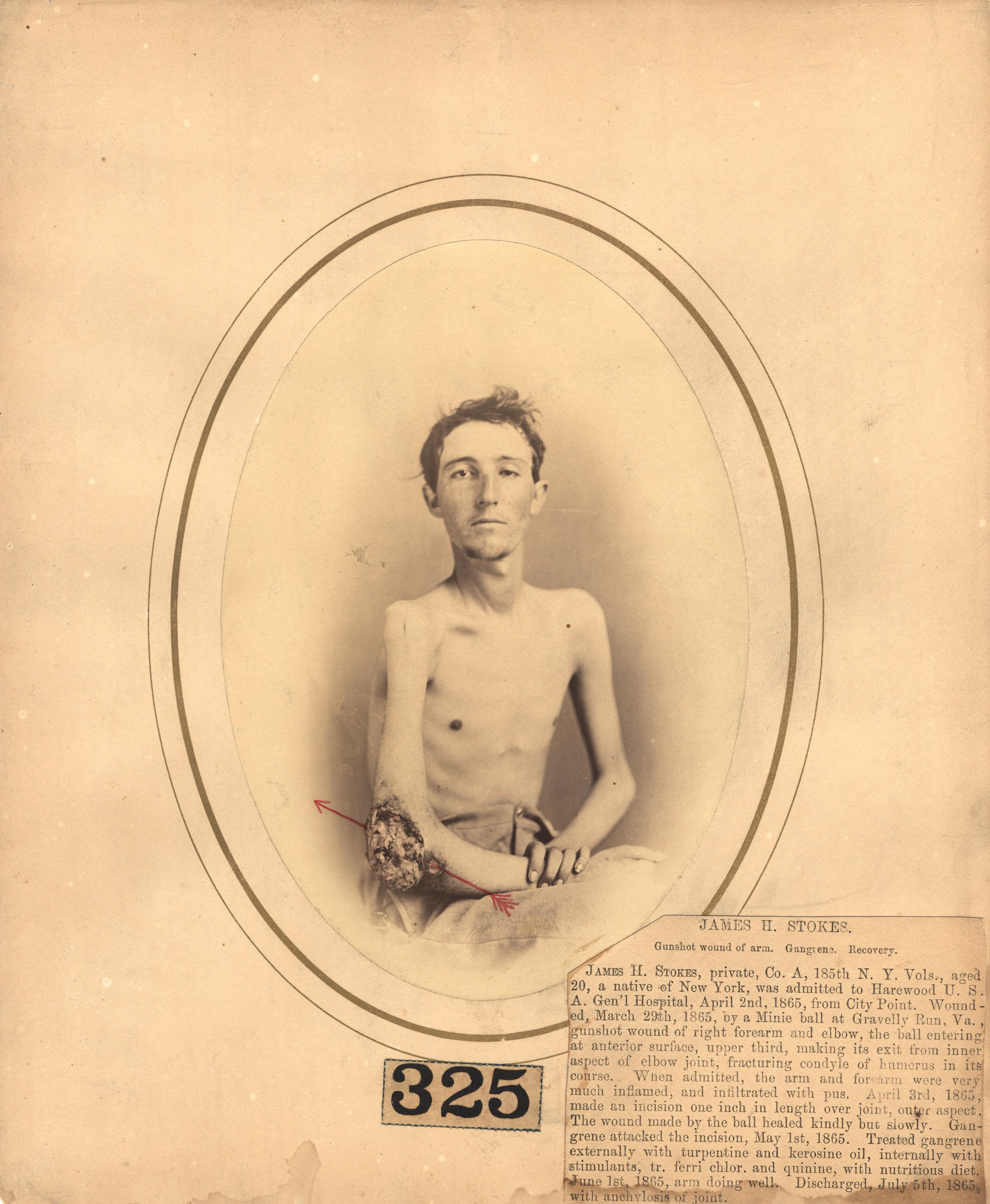 Fotó: Reed B. Bontecou: James H stokes, 20 éves közlegény, 1865. március 29-én sebesült meg a virginiai Gravelly Runnál. The National Library of Medicine