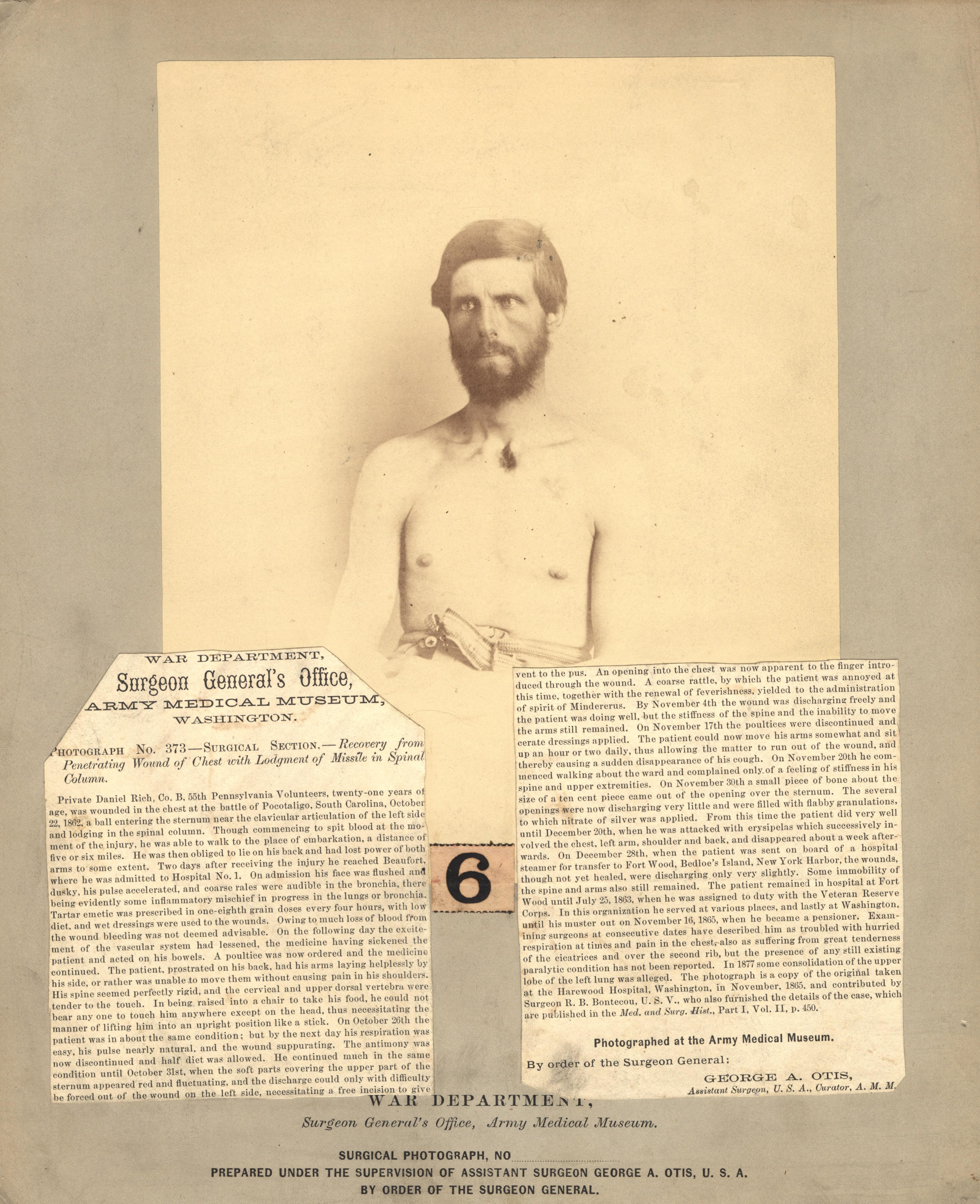 Fotó: Reed B. Bontecou: Daniel Rich, 21 éves közlegény, aki 1862. október 22-én sérült meg a Pocotaligo csatában, The National Library of Medicine