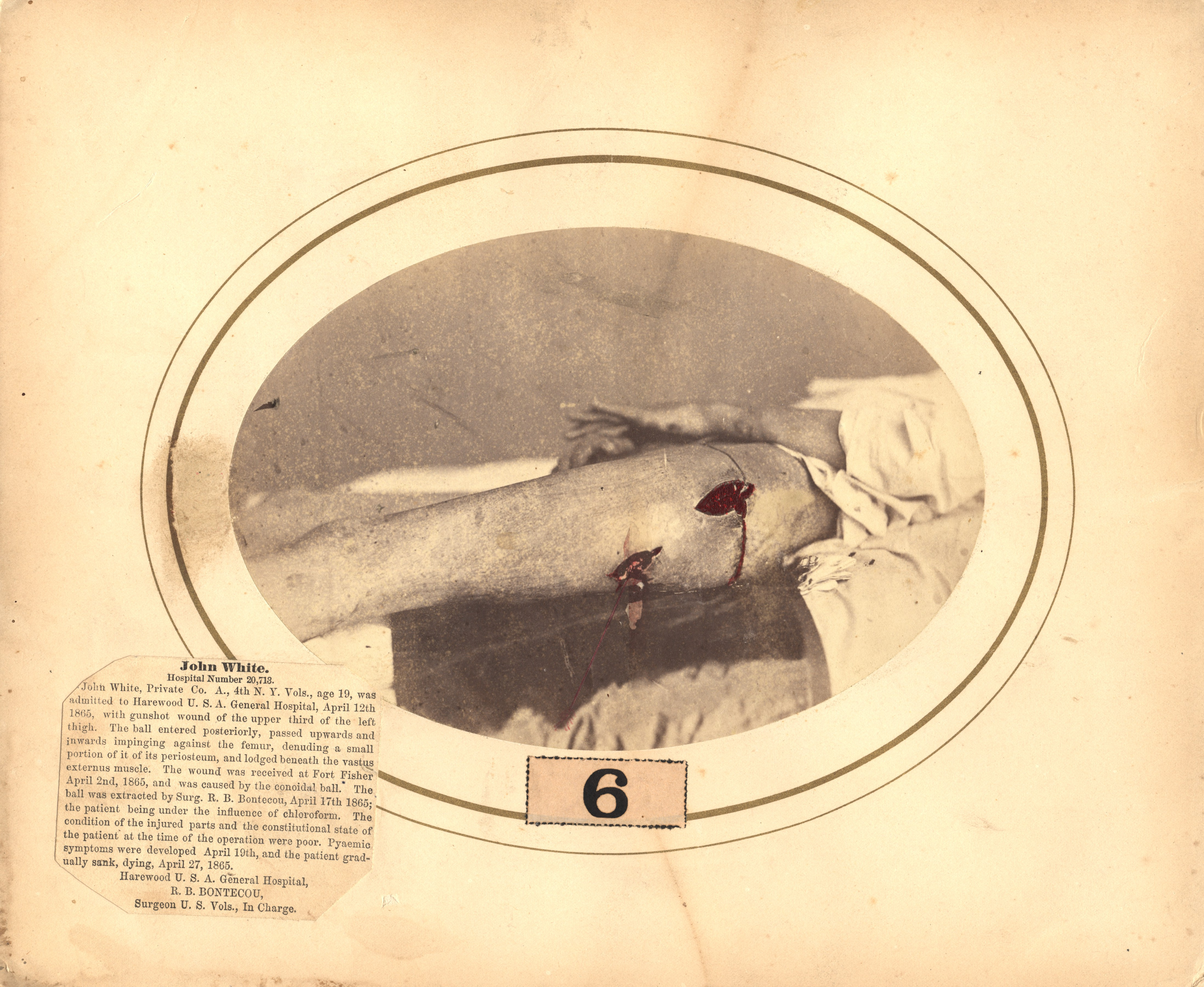 Fotó: Reed B. Bontecou: John White, 19 éves közlegény, aki 1865 április 12-én sebesült meg a Fisher erődnél, The National Library of Medicine