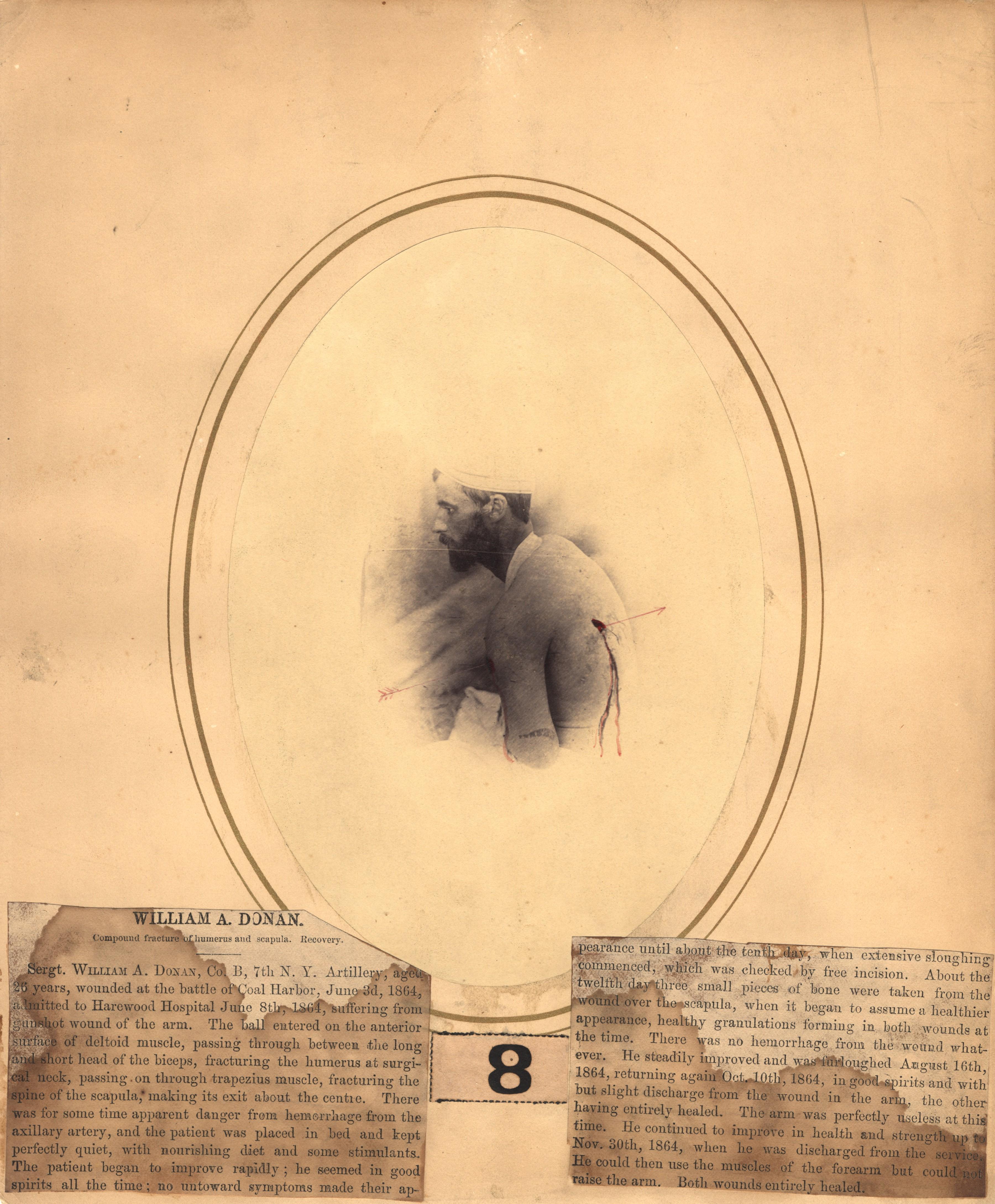 Fotó: Reed B. Bontecou: William A Donan, 26 éves őrmester, 1864. június 3-án sebesült meg Coal Harbor közelében, The National Library of Medicine
