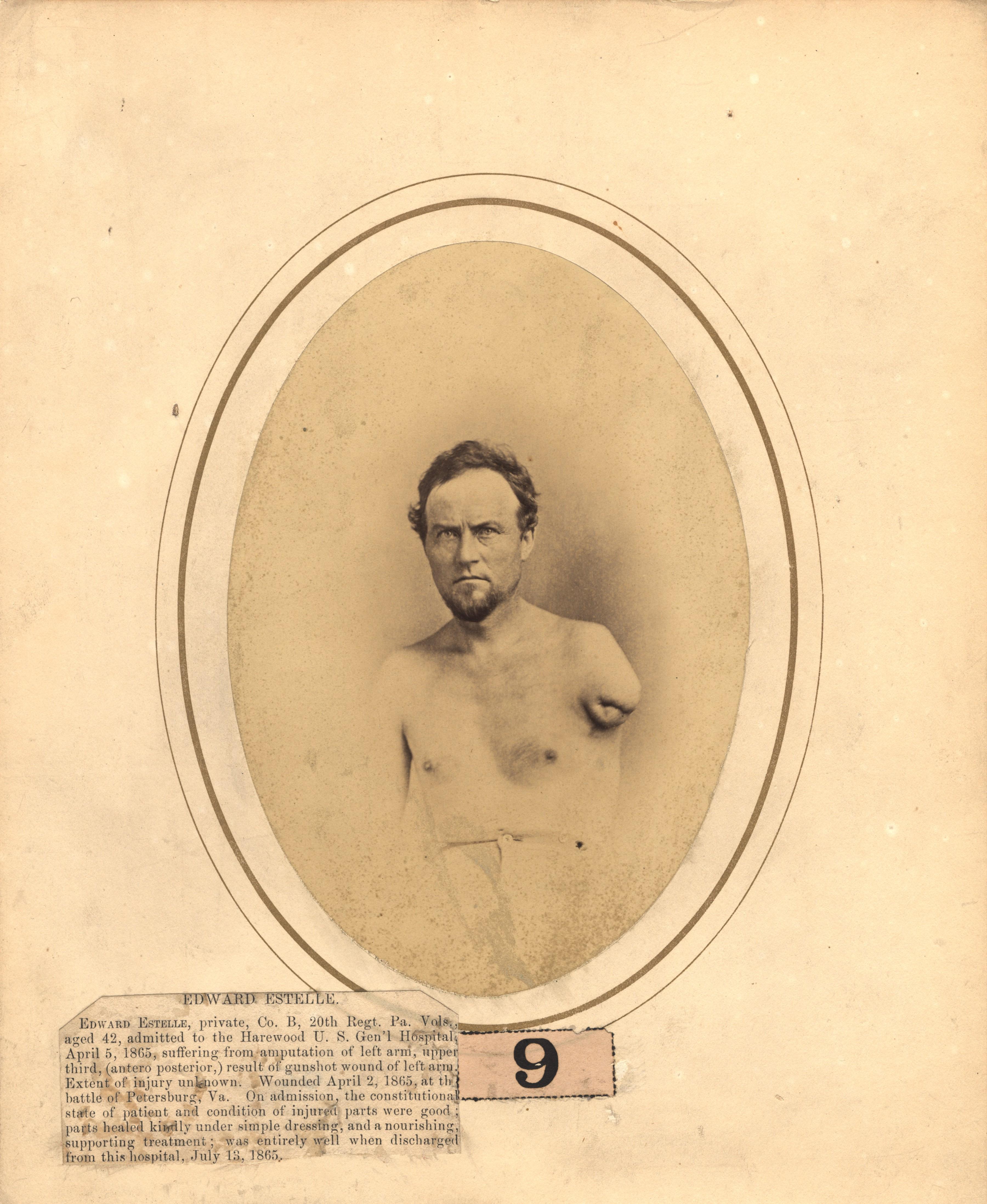 Fotó: Reed B. Bontecou: John Rudd, 32 éves, 1865. április 2-án sebesült meg a South Sidei vasútvonal közelében, The National Library of Medicine