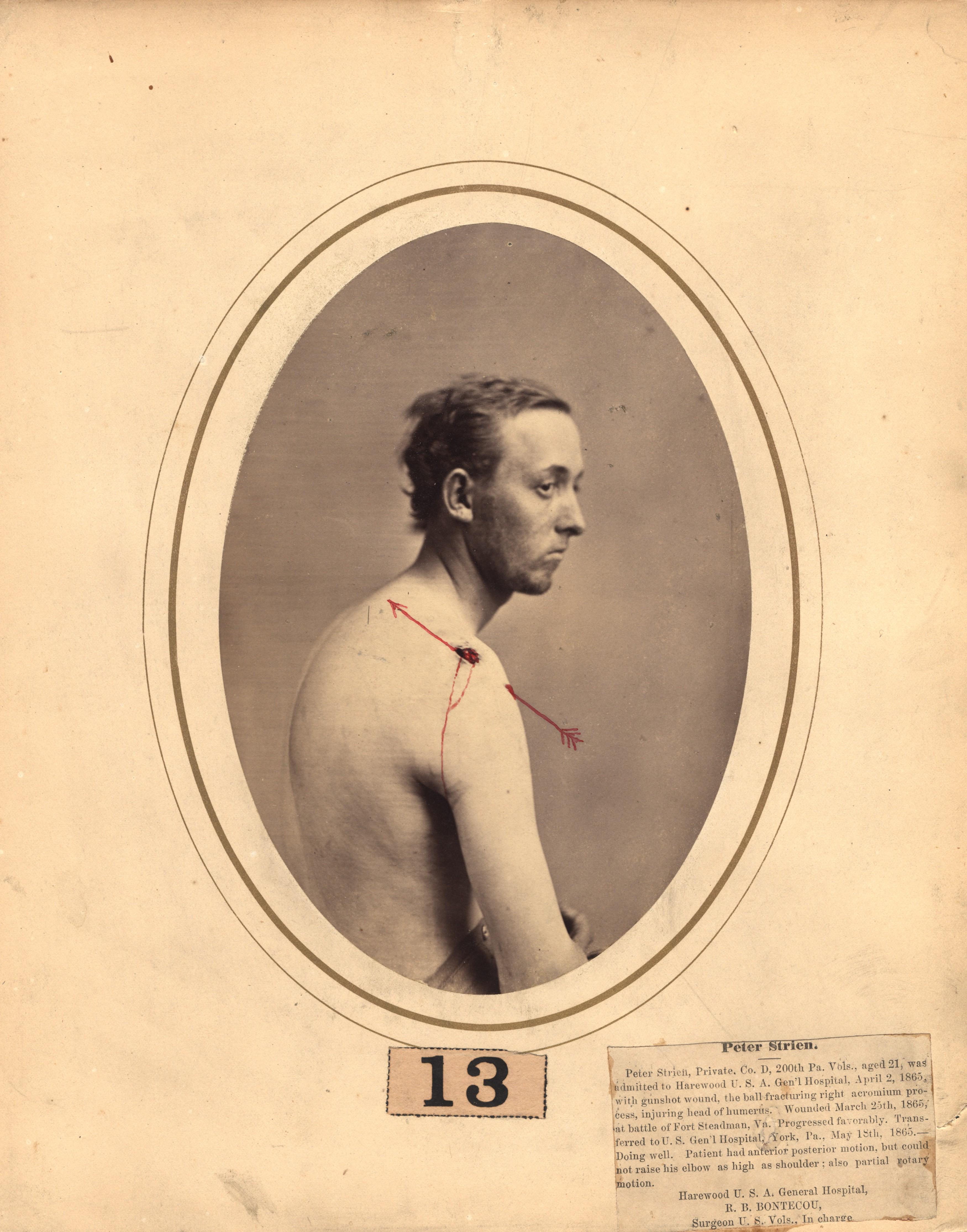 Fotó: Reed B. Bontecou: Peter Strien, 21 éves közlegény, 1865. március 25-én sebesült meg a Stedman-erődnél, The National Library of Medicine