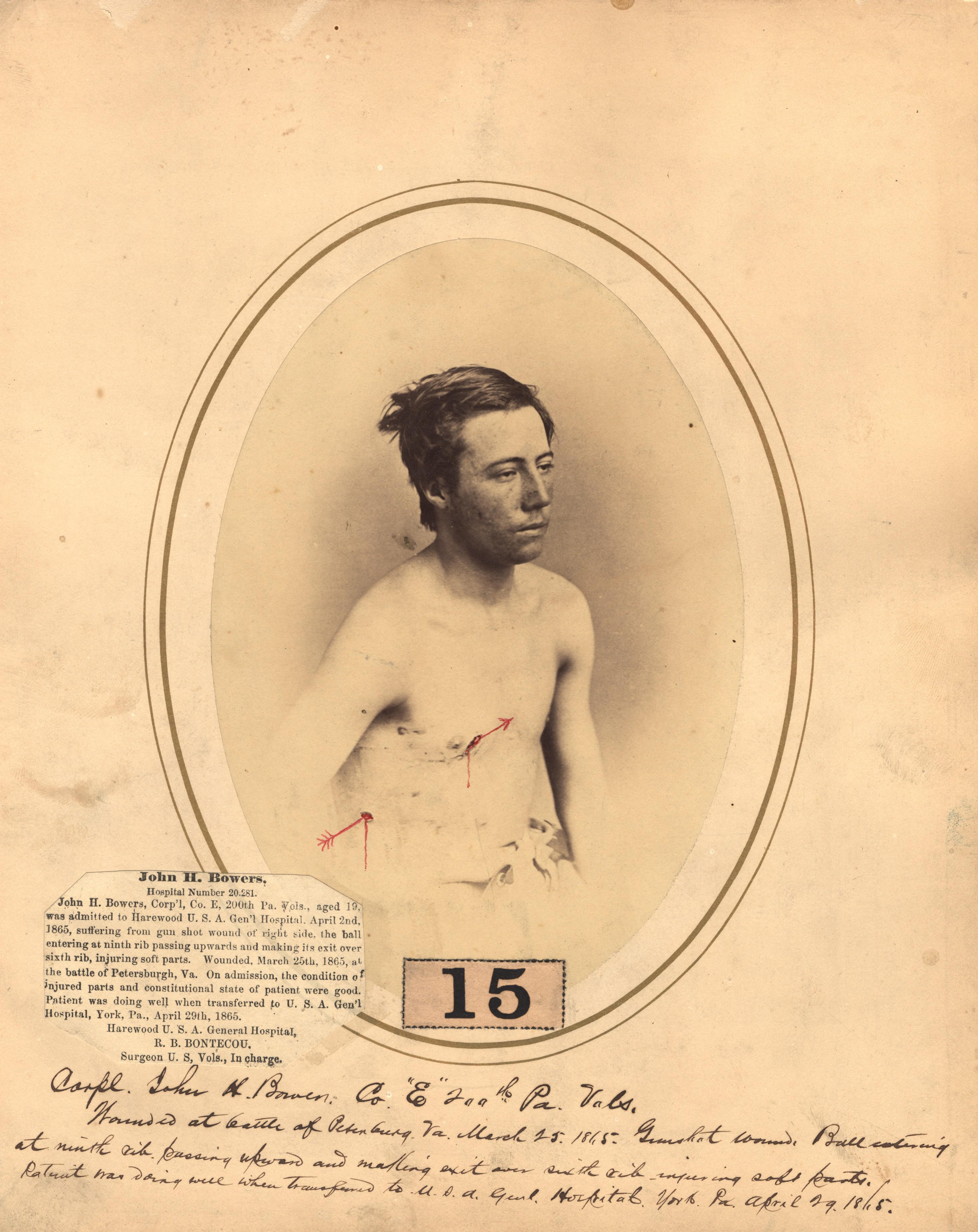 Fotó: Reed B. Bontecou: John H Bowers, 19 éves tizedes, aki 1865. március 25-én sebesült meg a Petersburgh-i csatában, The National Library of Medicine