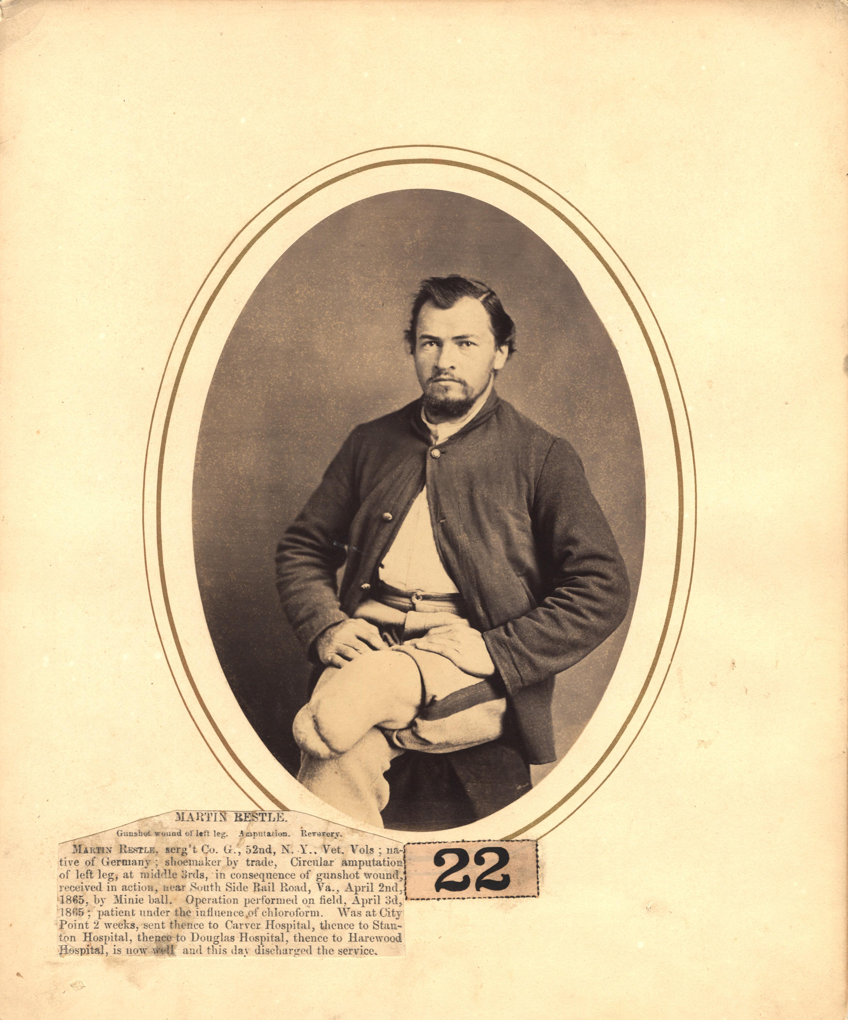 Fotó: Reed B. Bontecou: Martin Restle, 1865. április 2-án sebesült meg a South Sidei vasútvonal közelében, The National Library of Medicine