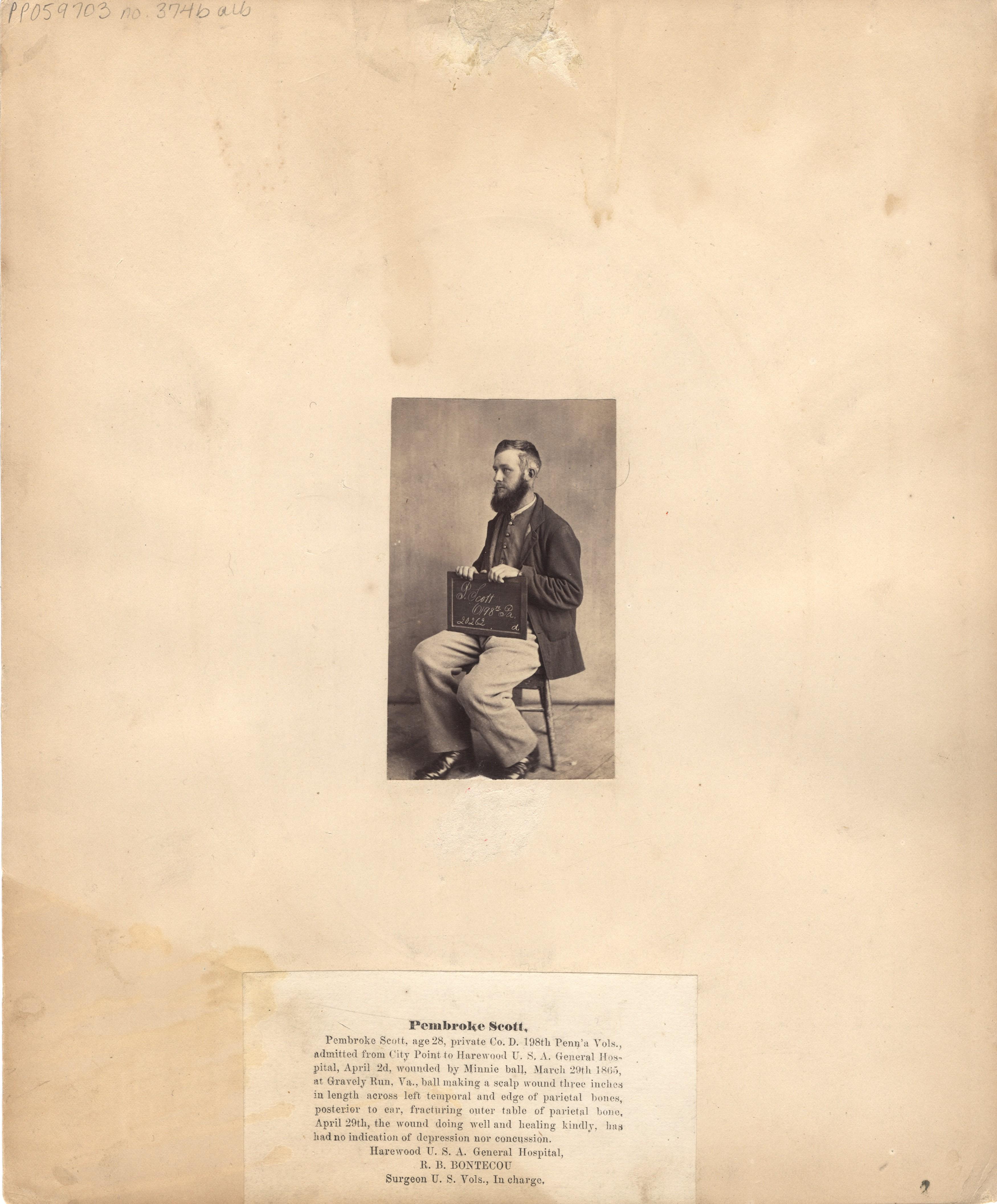 Fotó: Reed B. Bontecou: Pembroke Scott, 28 éves közlegény, 1865. március 29-én sebesült meg a virginiai Gravelly Runnál, The National Library of Medicine