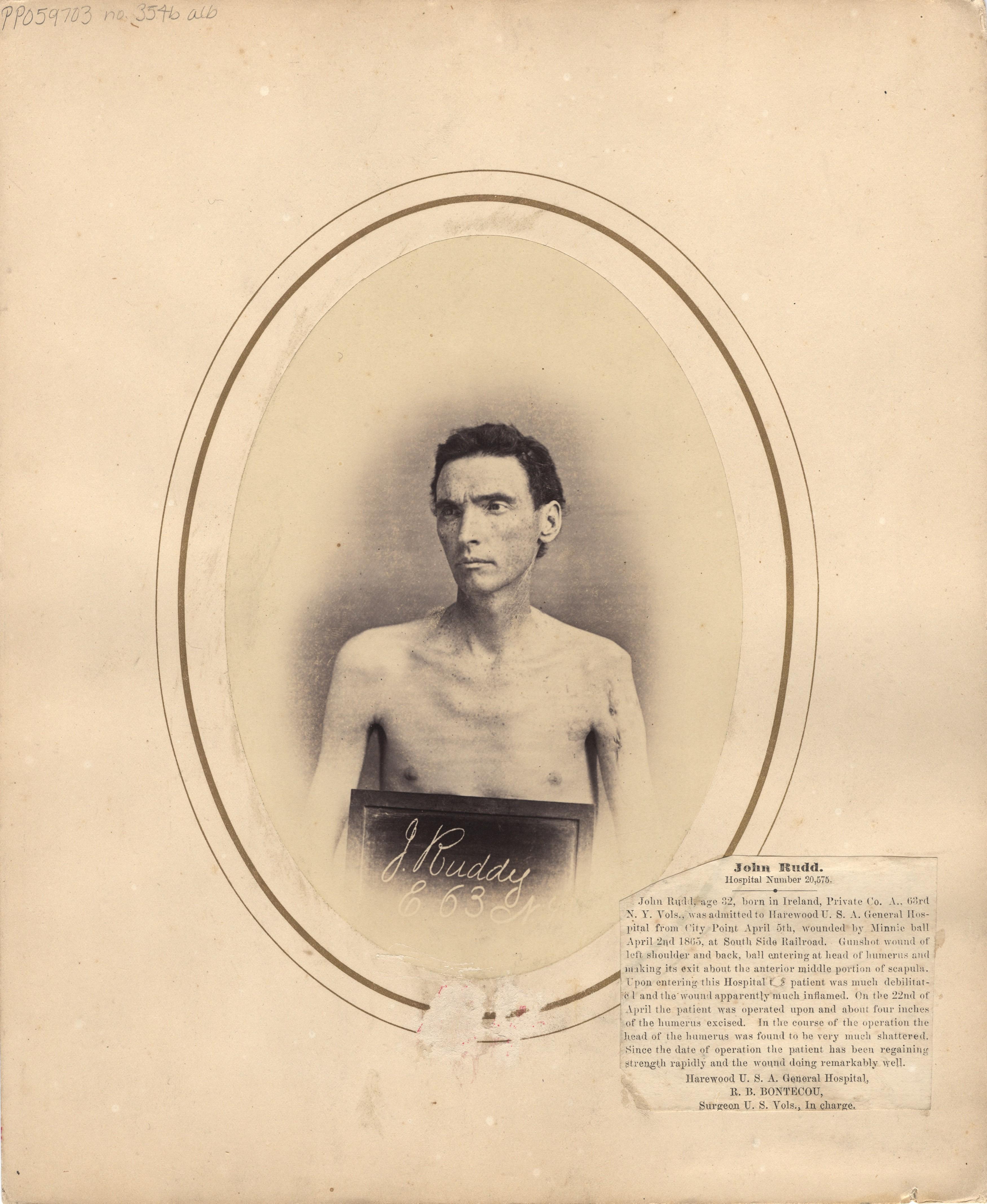 Fotó: Reed B. Bontecou: Edward Estelle, 42 éves közlegény,  aki 1865. április 2-án sebesült meg a Petersburgh-i csatában, The National Library of Medicine