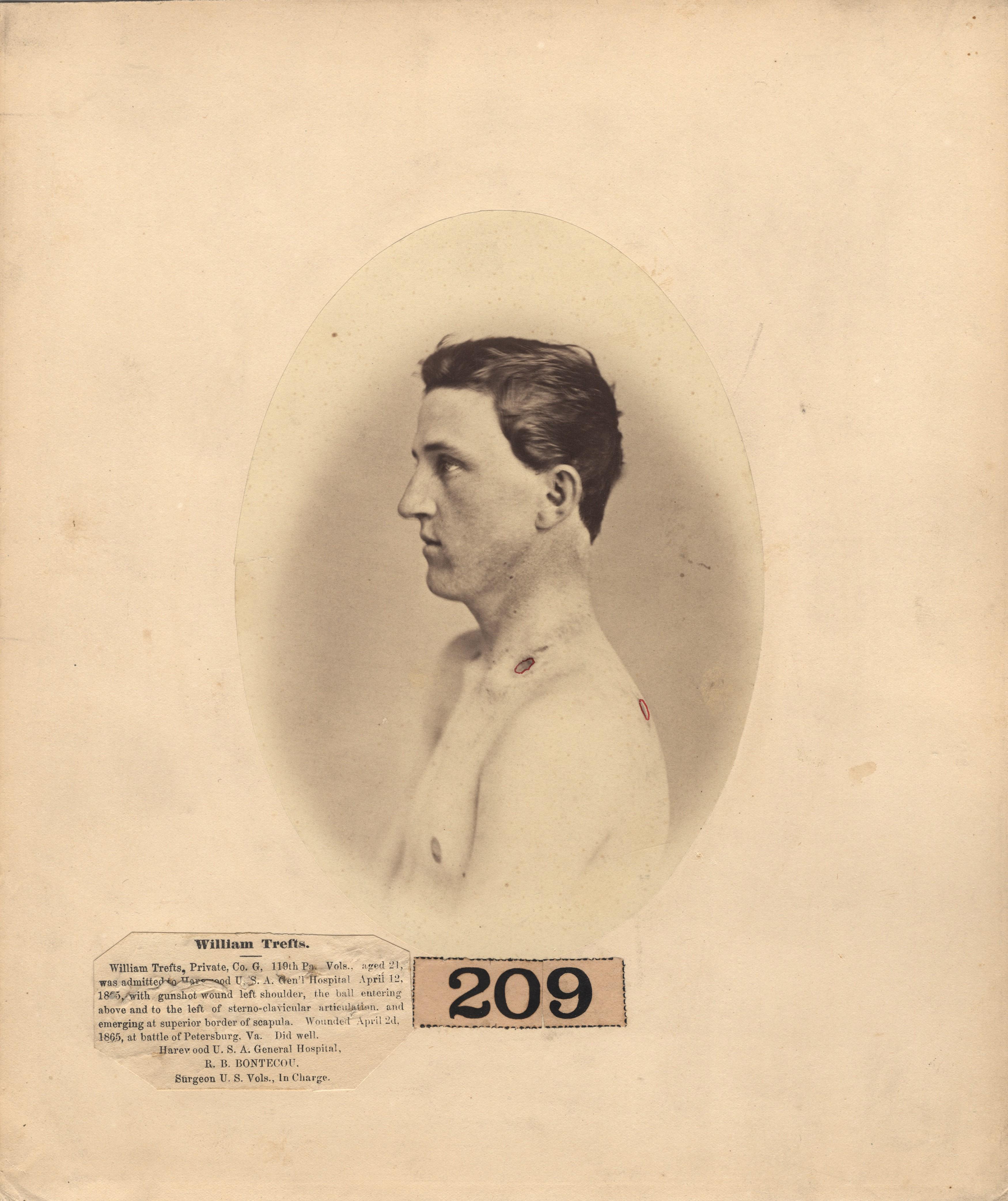 Fotó: Reed B. Bontecou: William Trefts, 21 éves közlegény, aki 1865. április 2-án sebesült meg a Petersburgh-i csatában, The National Library of Medicine