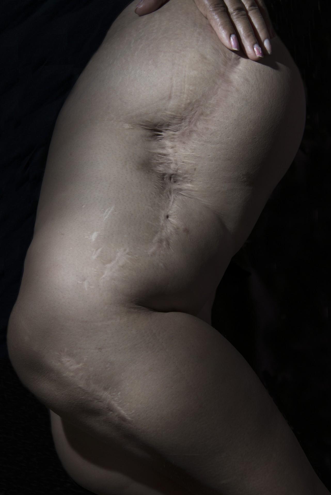 Fotó: Koleszár Adél: Celia sérülése Veracruzban, részlet Az erőszak sebei című sorozatból