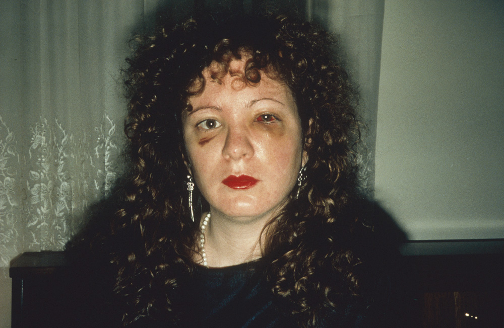 Fotó: Nan Goldin: Heart-Shaped Bruise, New York City, 1980 © Nan Goldin