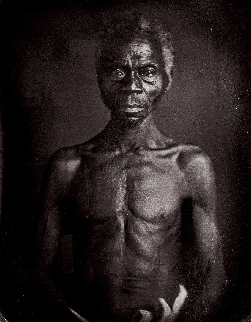 1850 márciusában Louis Agassiz fényképsorozatot rendelt Joseph T. Zealy (1812-93) fotográfustól, akit arra kért, hogy a dél-karolinai Columbiában élő rabszolgákról készítsen dagerrotípiákat.