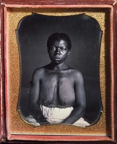 Ez volt a legelső fényképsorozat amerikai rabszolgákról.