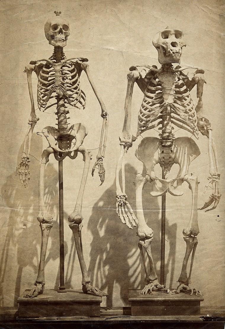 Az emberi és állati csontvázakat összehasonlító első képeket 1854-55 körül Roger Fenton készítette, aki akkoriban a British Museum hivatalos fotográfusa volt.