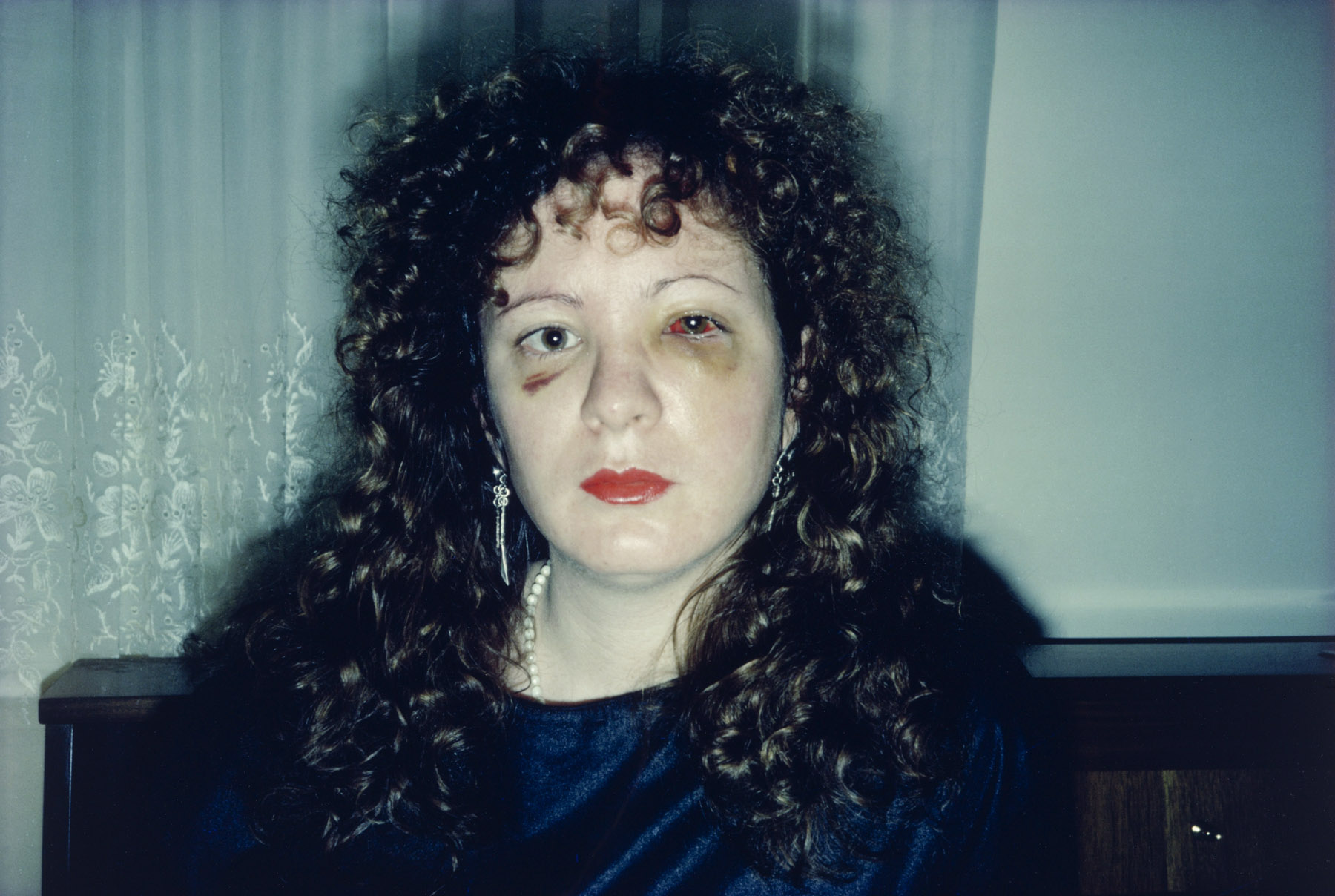 Fotó: Nan, one month after being battered, 1984 © Nan Goldin