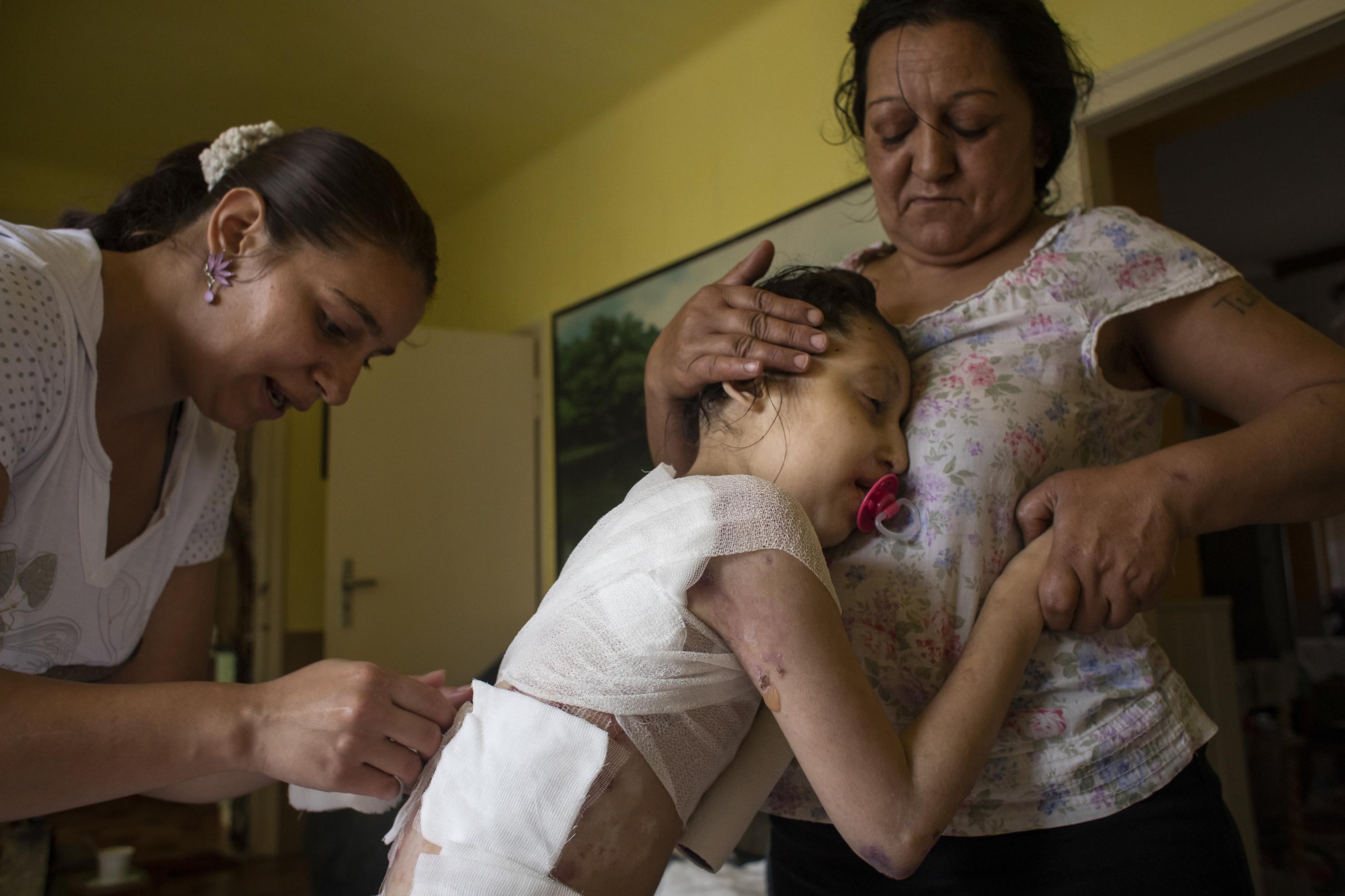 Fotó: Kovács Bea: Lídia és Karol átkötözik Miranda sebeit. Az akár 2-3 órán át tartó kötszercserék a lány napjainak legfontosabb és egyben legfájdalmasabb eseményei voltak.