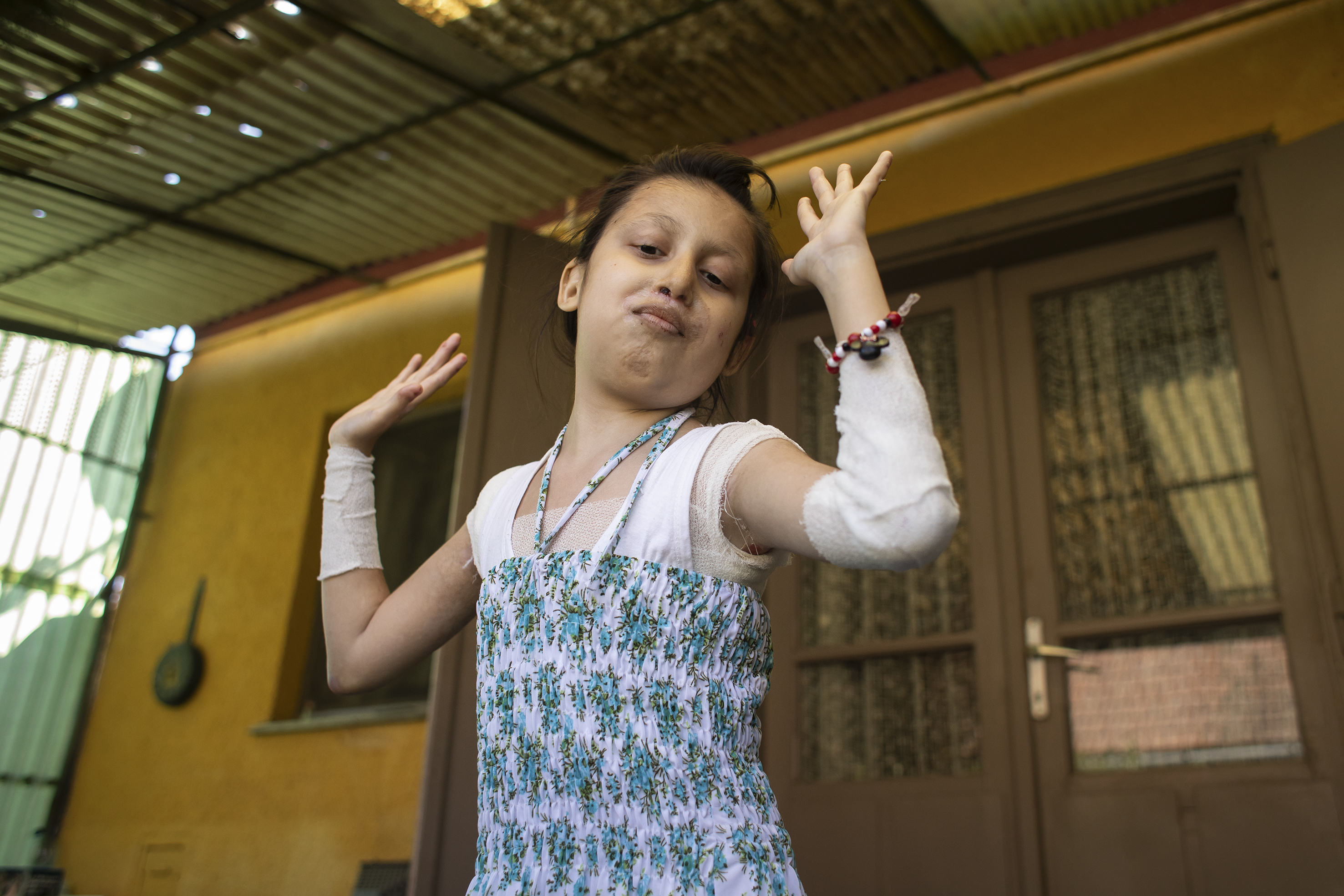 Fotó: Kovács Bea: Miranda nem tudott sokat sétálni, hamar elfáradt, de ha táncról volt szó, akkor nem létezett akadály. Születésnapján is sokszor táncra perdült.