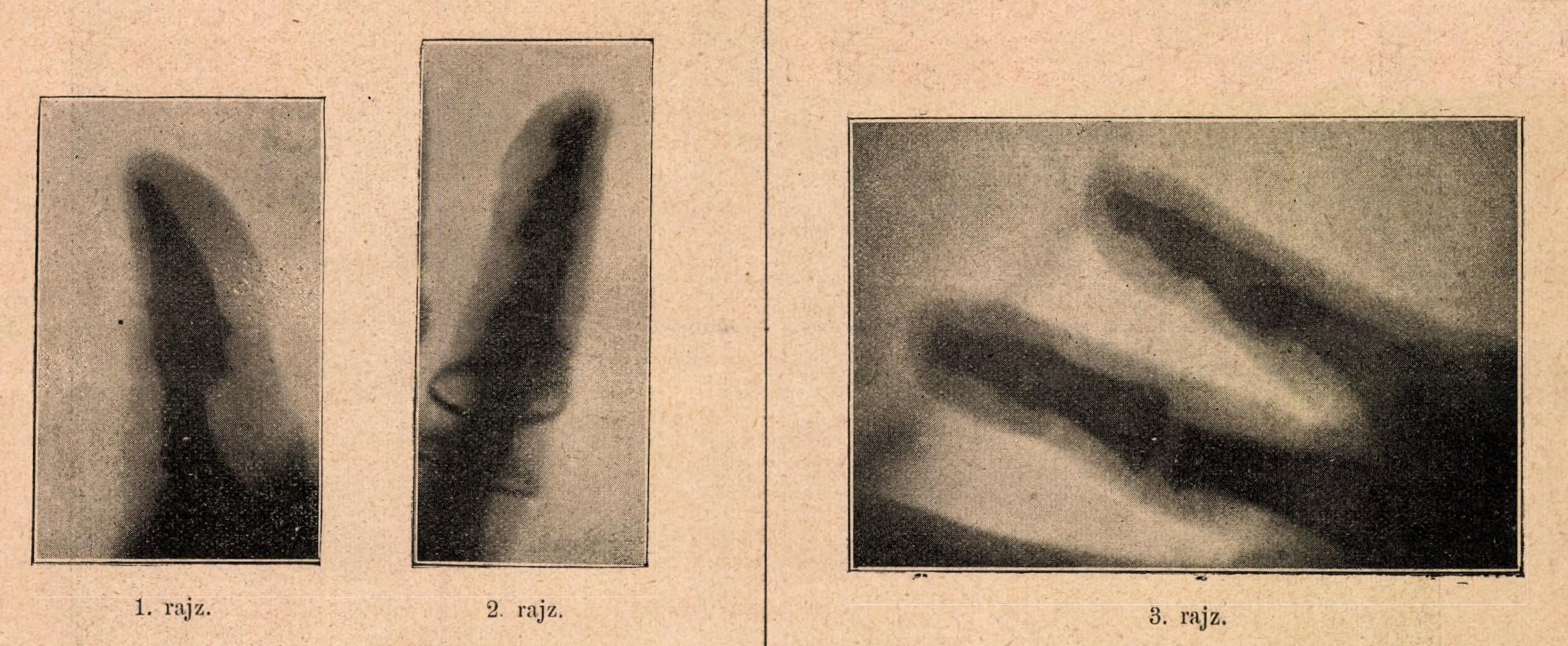 02_dr_klupathy_jeno_ujjakrol_keszitett_rontgenfelvetelei_orvosi_hetilap_1896_januar_19.jpg