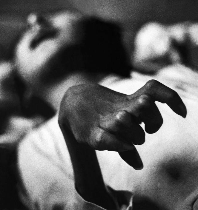 Fotó: W. Eugene Smith: Minamata-öböl. Iwazo Funaba keze, 1971 © W. Eugene Smith/Magnum Photos