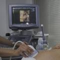 """Terhességi genetikai vizsgálaton jártunk - Amikor beüt a """"Te is fiam, Brutus!"""" életérzés"""