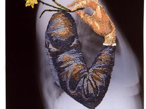 Röntgenképek újragondolva