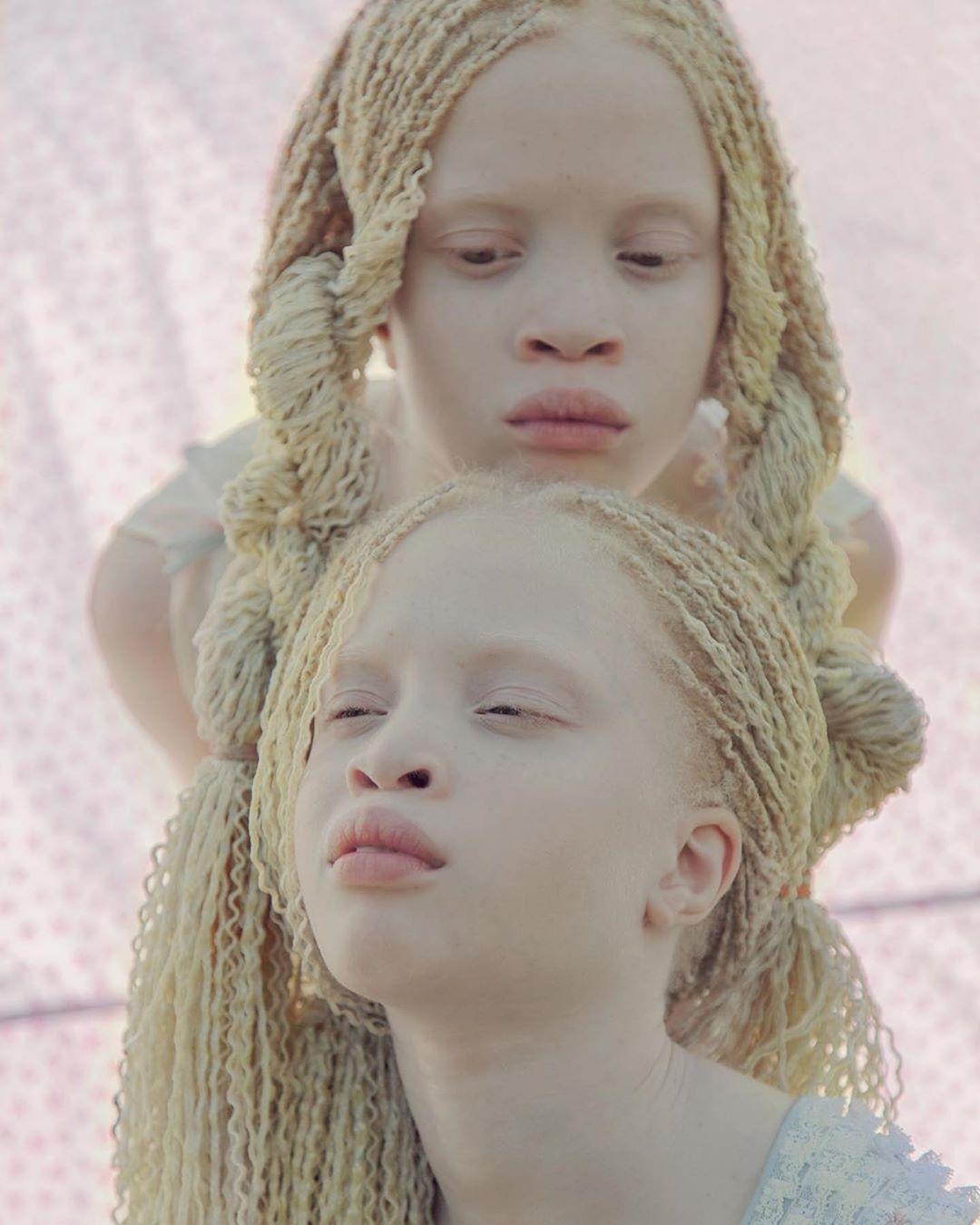 A 11 éves Lara és Mara Bawar São Pauloból, Brazíliából származnak, és nagyon különlegesnek tartják az albinizmusukat.