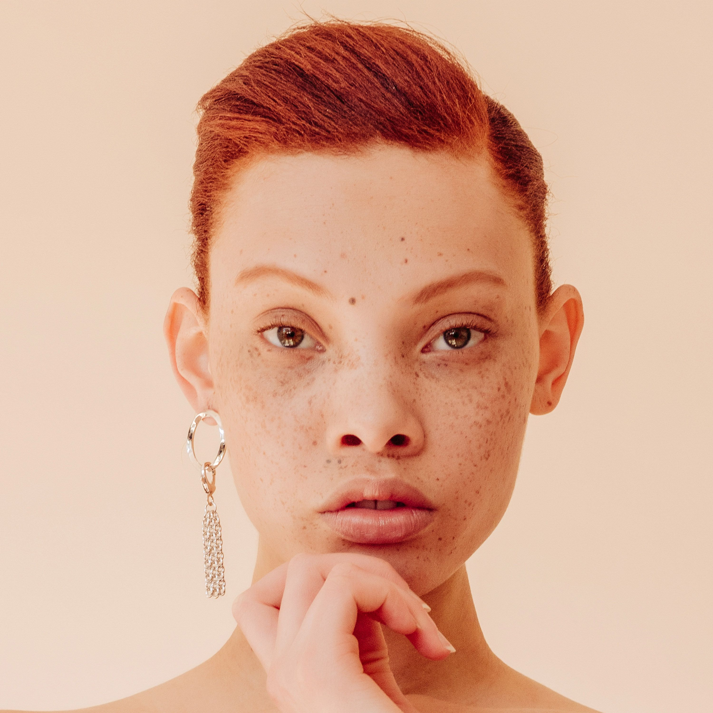Aleece Wilson szeplős modell a kedvenc új arcok között van