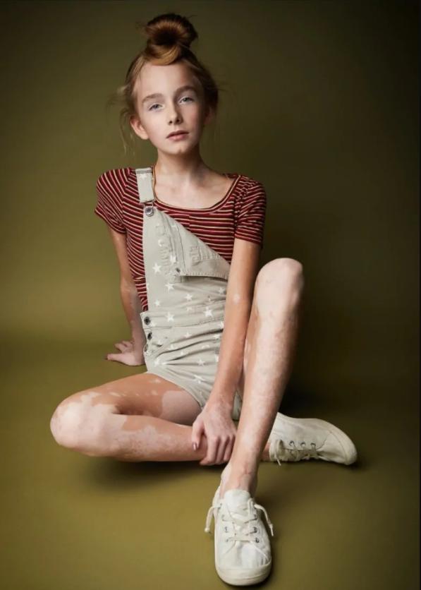 Ava Bright egy feltörekvő vitiligós modell