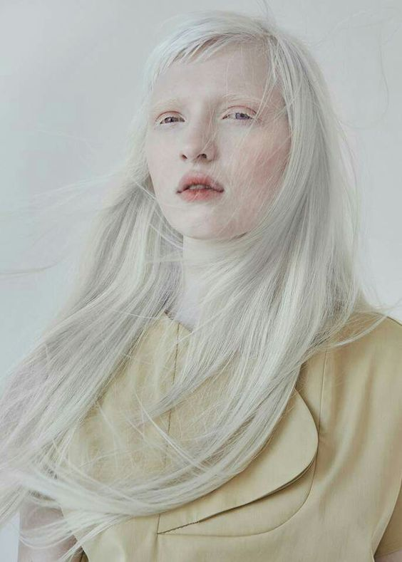 Nastia Zhidkova moszkvai modell, becenevén Kiki, főleg magazinoknak dolgozik. Gyengénlátással küzd, ahogy sok albínó társa, de ez nem akadályozza a munkában!