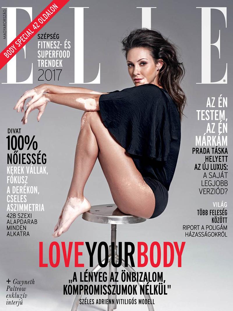 Széles Adrienn, vitiligós modell az ELLE Magyarország címlapján