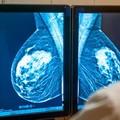 Már két hete nem jó a Mátészalkai  Kórházban a mammographiás gép.