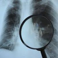 Már baktalórántházi tüdőgondozó sem fogadja a mátészalkai körzet lakosait !