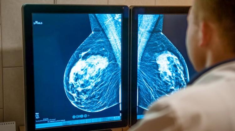 mammografia_mellrak_n.jpg