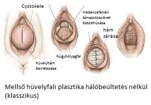 cystokele_4.jpg
