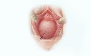 pelvic_prolapse_clip_image006.png