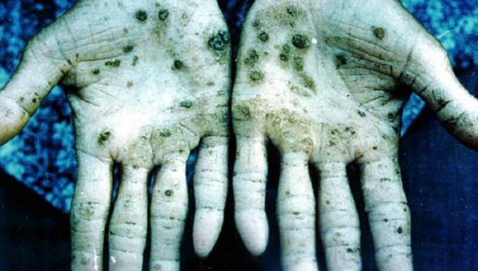 Az öt leghalálosabb méreg a világon