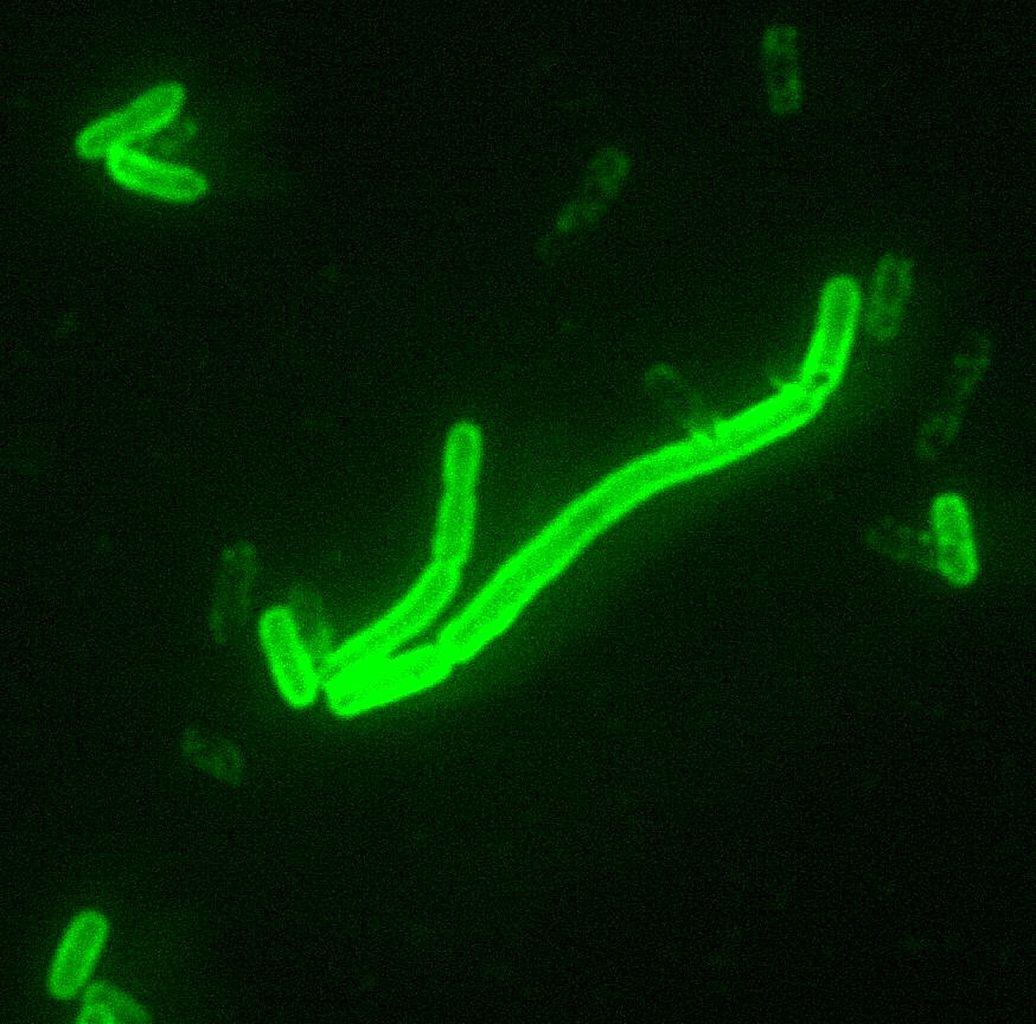 1036px-Yersinia_pestis_fluorescent.jpeg